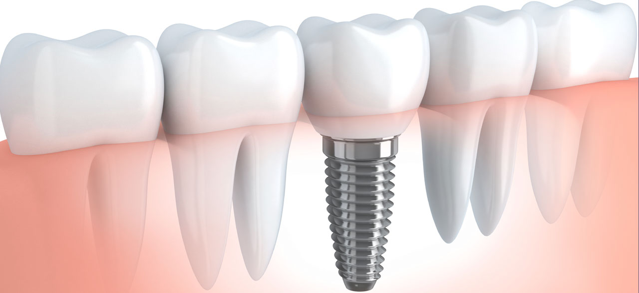 Fitting a Dental Implant